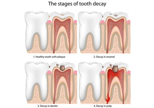 The stages of tooth decay | Aria Dental Perth