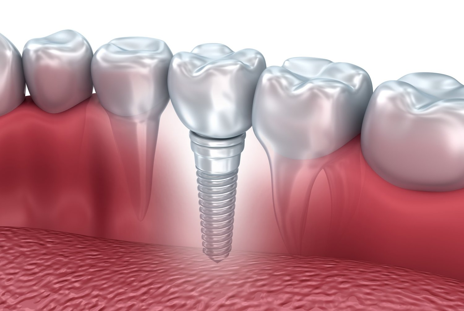 Singe tooth implant