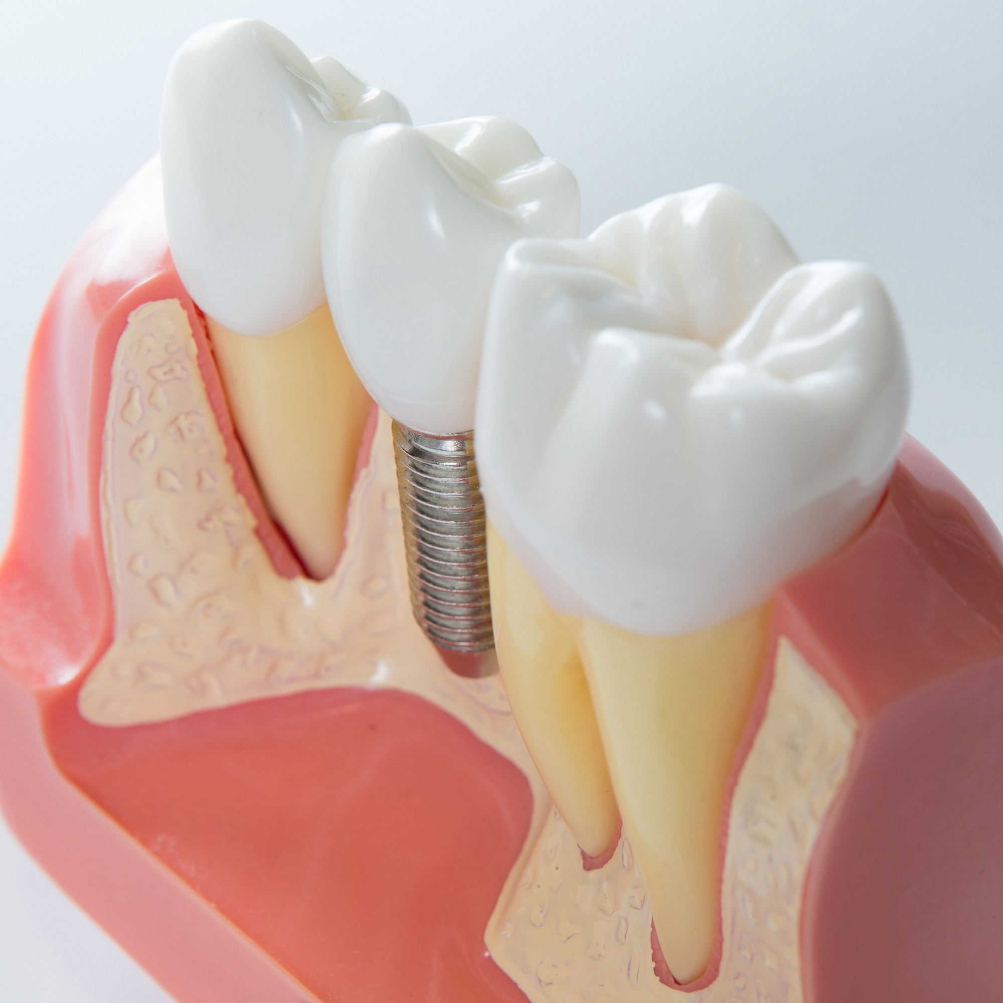 Components of a dental implant | Model of a dental implant