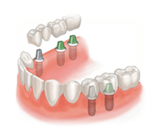 teeth-replacement