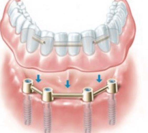 Overdenture Removable Type