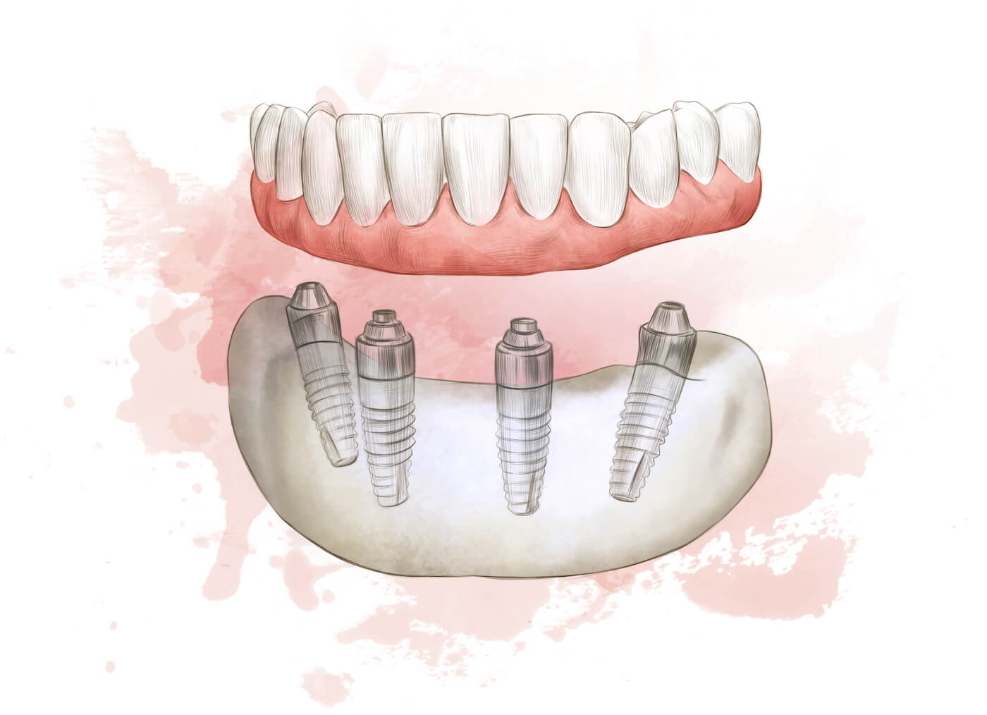 All on 4 dental implants at Aria Dental Perth