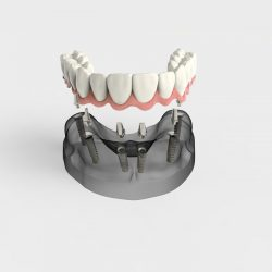 Full Arch Fixed Implant