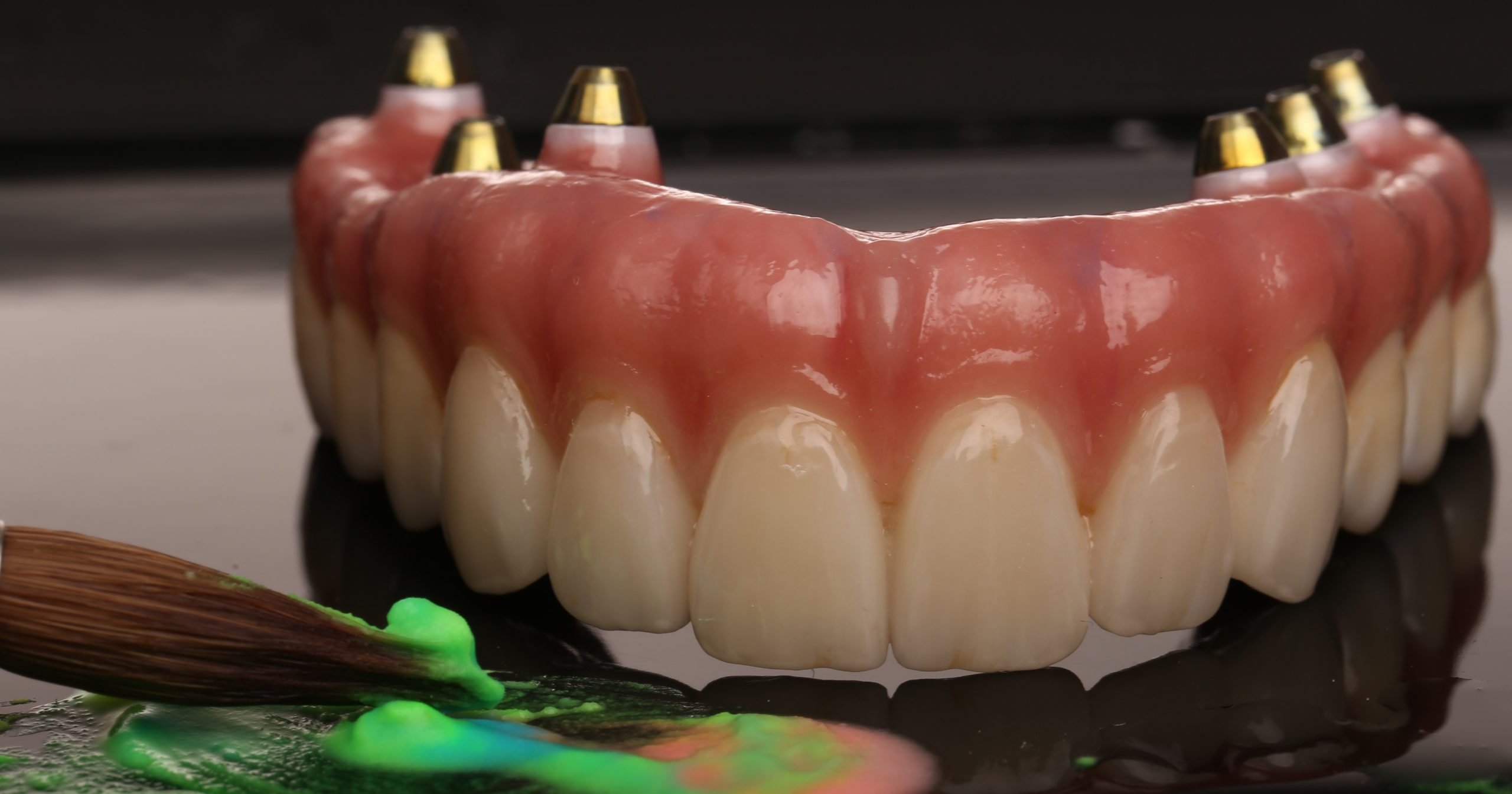 Dental implant All on 6 All on 4