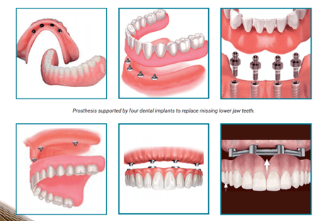 Prosthesis supported teeth