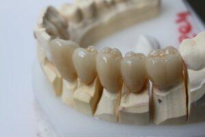 Dr Michael Zaninovich – specialist prosthodontist at Aria Dental, Perth